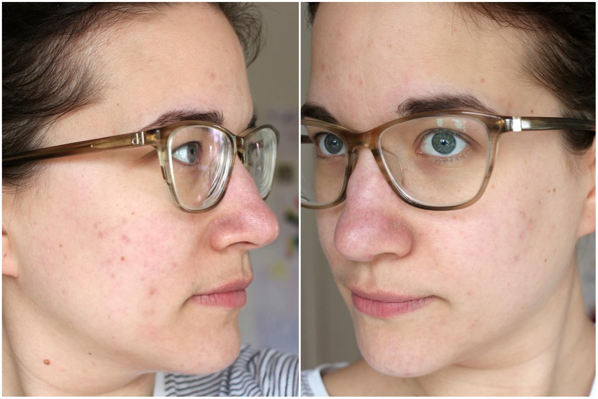 Hautunreinheiten, Behandlung, Ergebnis
