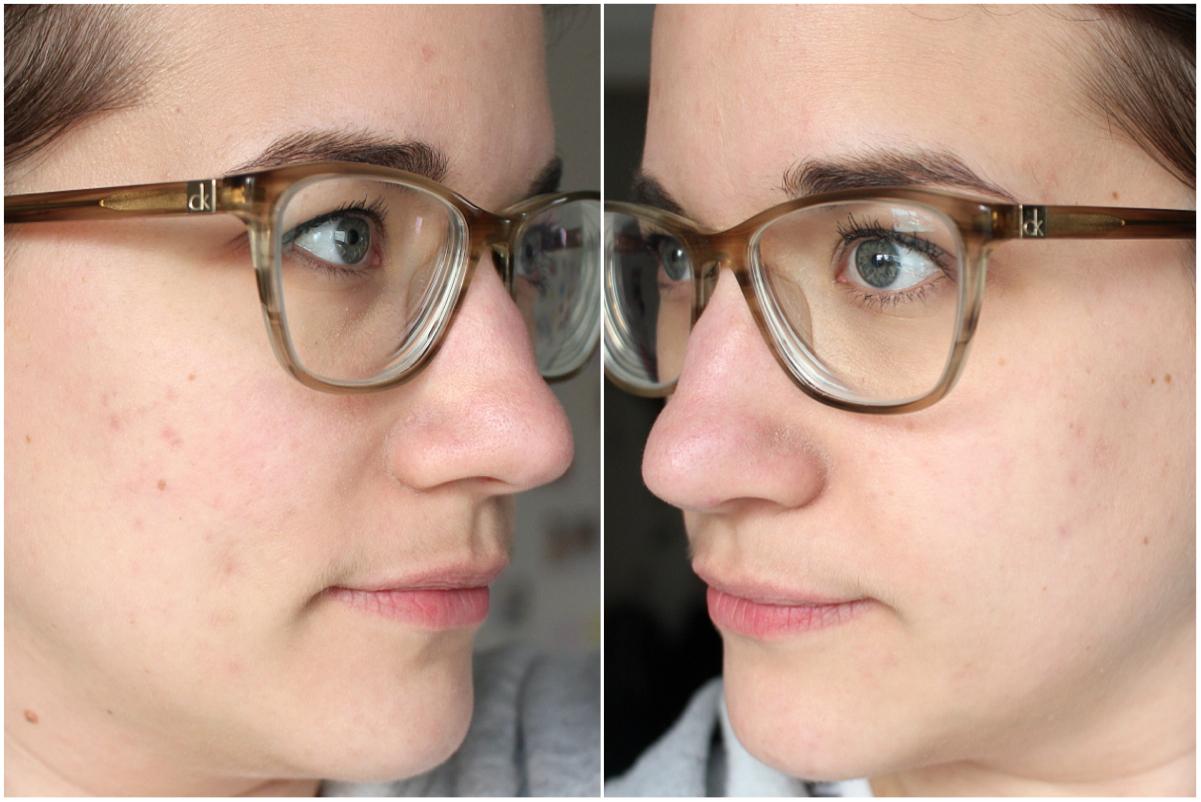Hautunreinheiten Ergebnis nach der Behandlung mit Epiduo
